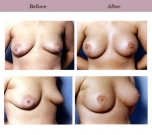 Breast Lift Patient Case History 1 by Cosmetic Surgeon Dr. Diane Gibby