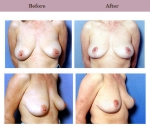 Breast Lift Patient Case History 2 by Cosmetic Surgeon Dr. Diane Gibby