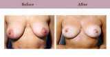 Breast Lift Patient Case History 3 by Plastic Surgeon Dr. Diane Gibby