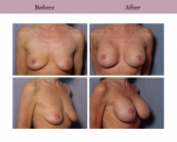 Breast Lift Patient Case History 4 by Texas Cosmetic Surgeon Dr. Diane Gibby