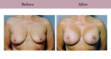 Breast Lift Patient Case History 5 by Dallas Cosmetic Surgeon Dr. Diane Gibby