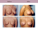 Breast Lift Patient Case History 6 by Plastic Surgeon Dr. Diane Gibby