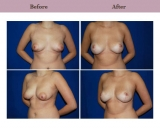 Breast Lift Patient Case History 7 by Texas Plastic Surgeon Dr. Diane Gibby