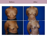 Breast Lift Patient Case History 8 by Dallas Plastic Surgeon Dr. Diane Gibby