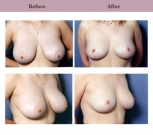 Breast Reduction Patient Case History 1 by Cosmetic Dr. Diane Gibby