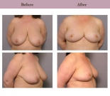 Breast Reduction Patient Case History 2 by Plastic Surgeon Dr. Diane Gibby