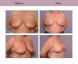 Breast Reduction Patient Case History 3 by Cosmetic Surgeon Dr. Diane Gibby