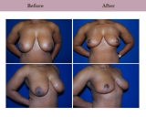 Breast Reduction Patient Case History 4 by Plastic Surgeon Dr. Diane Gibby