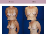 Breast Reduction Patient Case History 5 by Cosmetic Surgeon Dr. Diane Gibby