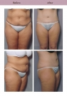 Tummy Tuck Patient Case History 1 by Cosmetic Surgeon Dr. Diane Gibby